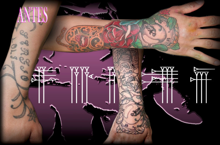 Tapado de tatuajes en Granada